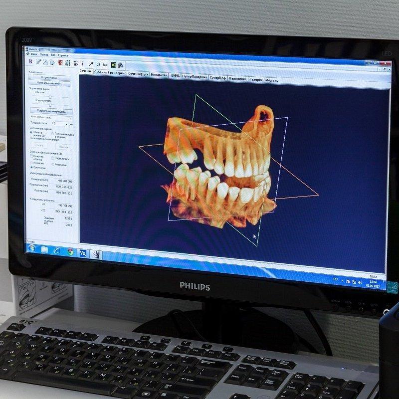 Цифровий рентген