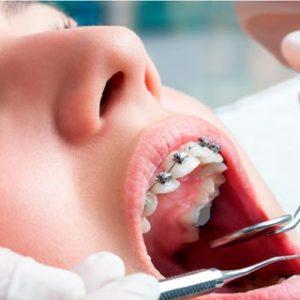 Ortodontiya-KC-Dent